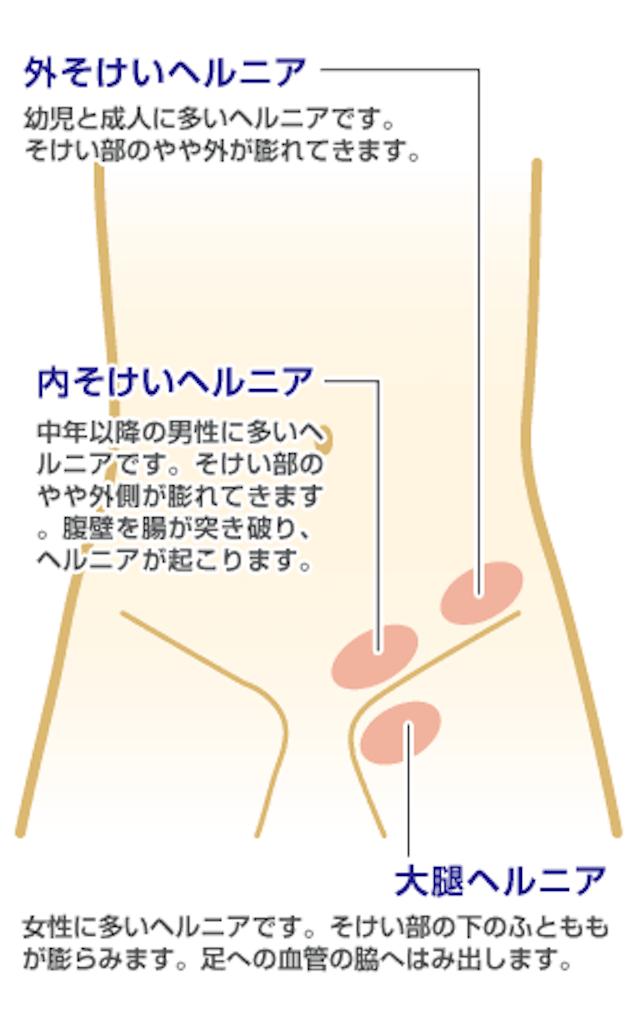 f:id:yukuma0721:20190605140345p:image