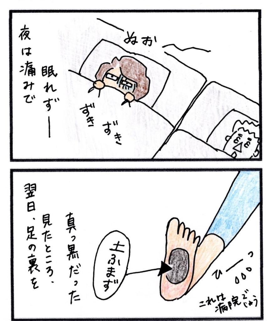 f:id:yulux:20180620163755j:plain