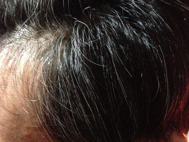 【美容師レビュー】白髪の状態、顔周りに白髪がややあり