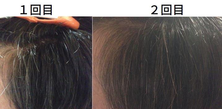 【美容師レビュー】ルプルプは染まるのか、顔周りの染まり具合2回目