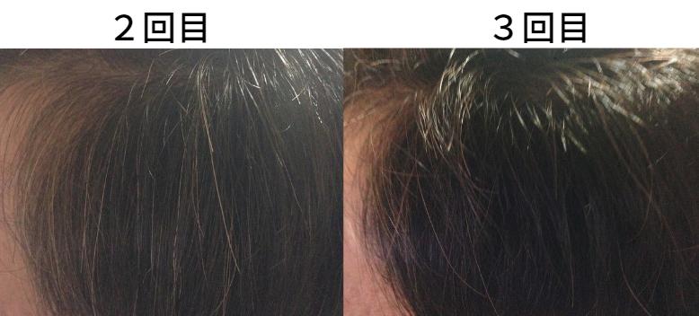 【美容師レビュー】ルプルプは染まるのか、顔周りの染まり具合3回目