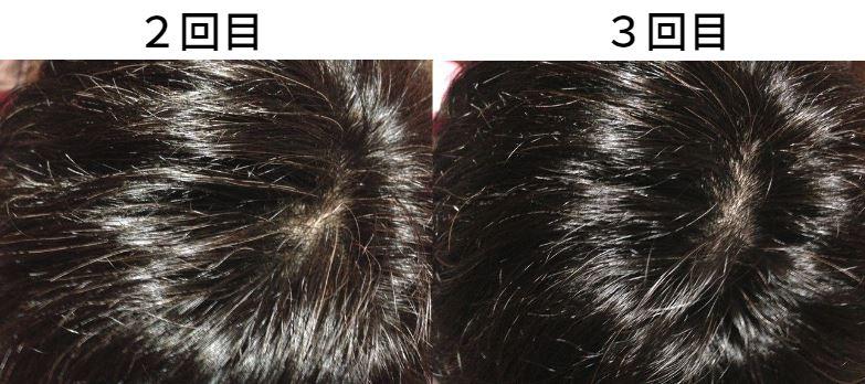 【美容師レビュー】ルプルプは染まるのか、頭頂部の染まり具合3回目