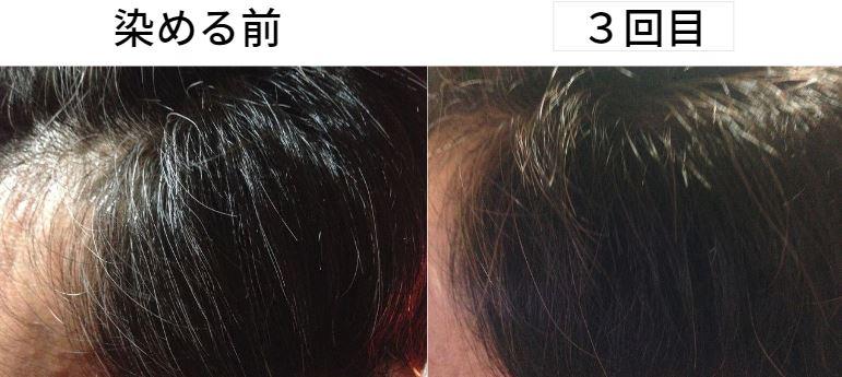 【美容師レビュー】ルプルプは染まるのか、染める前と3回目に染めた写真で染まり具合を検証してみます2