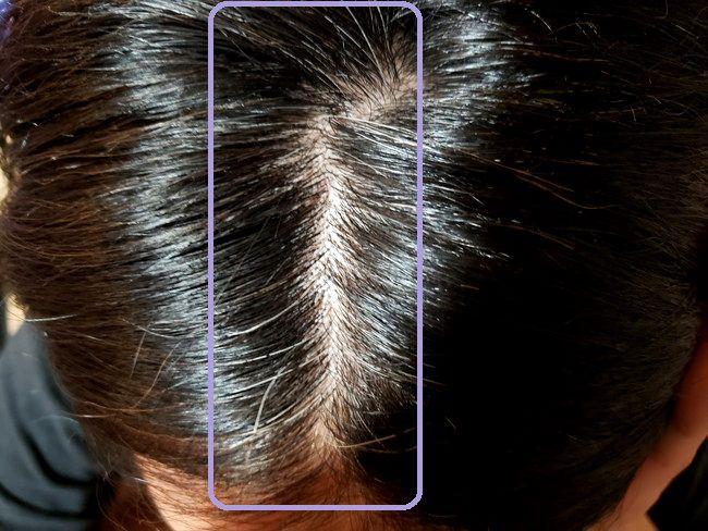 綺和美 Root Vanish 白髪染め ヘアカラートリートメントで染める前の白髪具合1