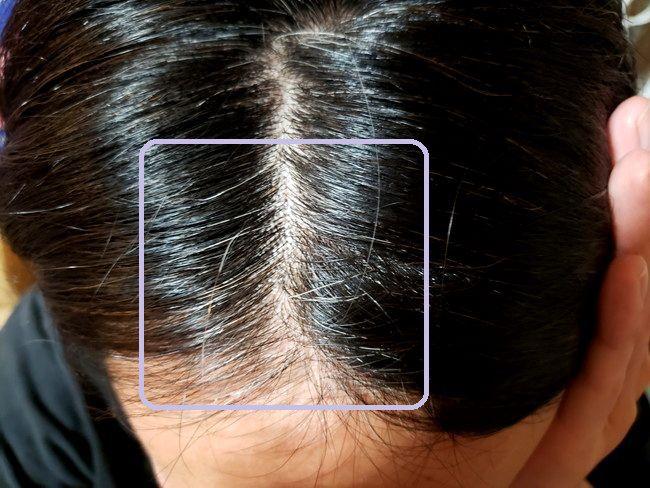綺和美 Root Vanish 白髪染め ヘアカラートリートメントで染める前の白髪具合2