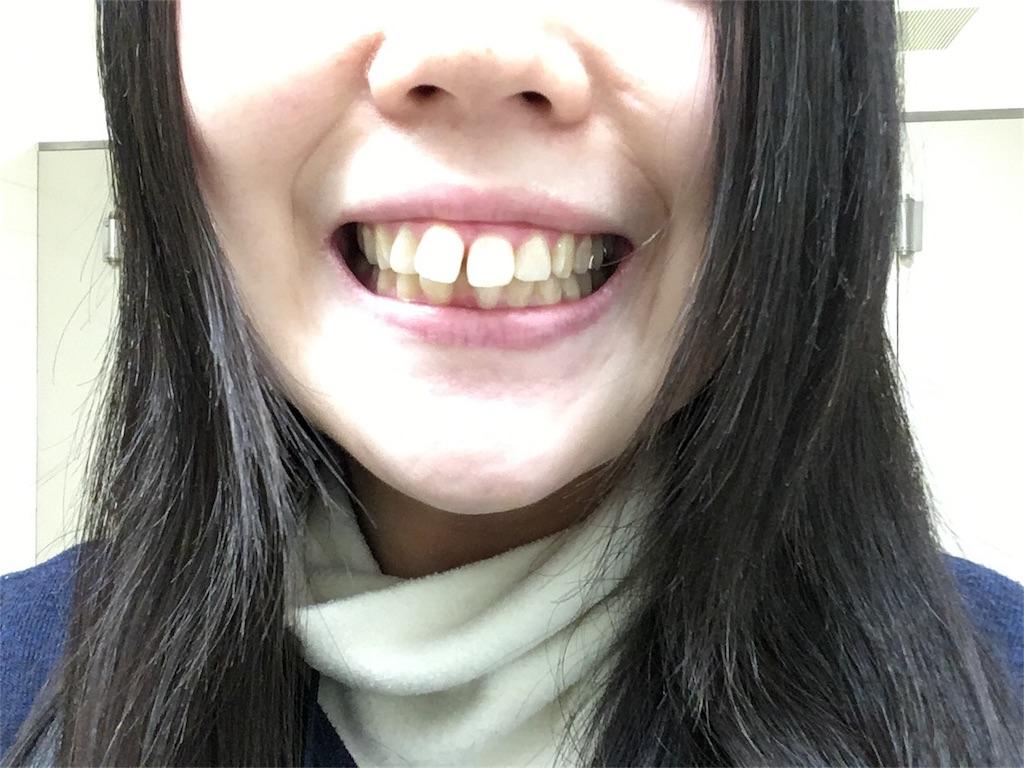 f:id:yumeketsu:20180116145349j:image