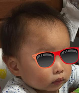 1歳6カ月((三角頭蓋検査直前)