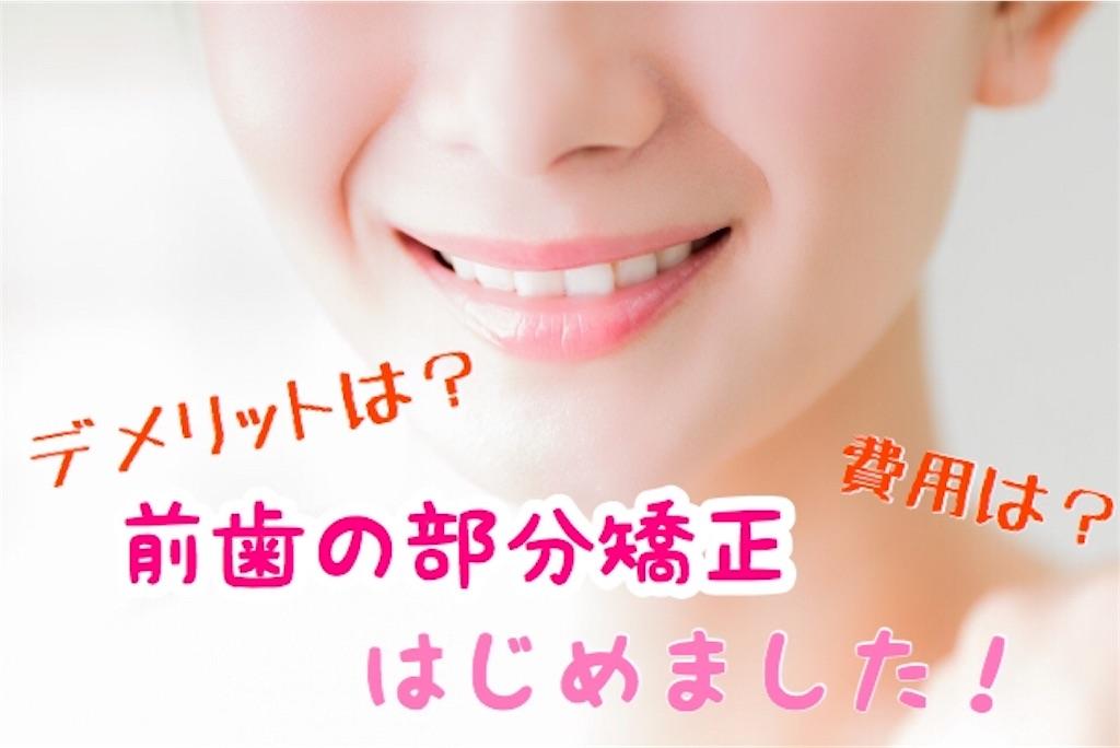 f:id:yurina12:20190408130807j:image