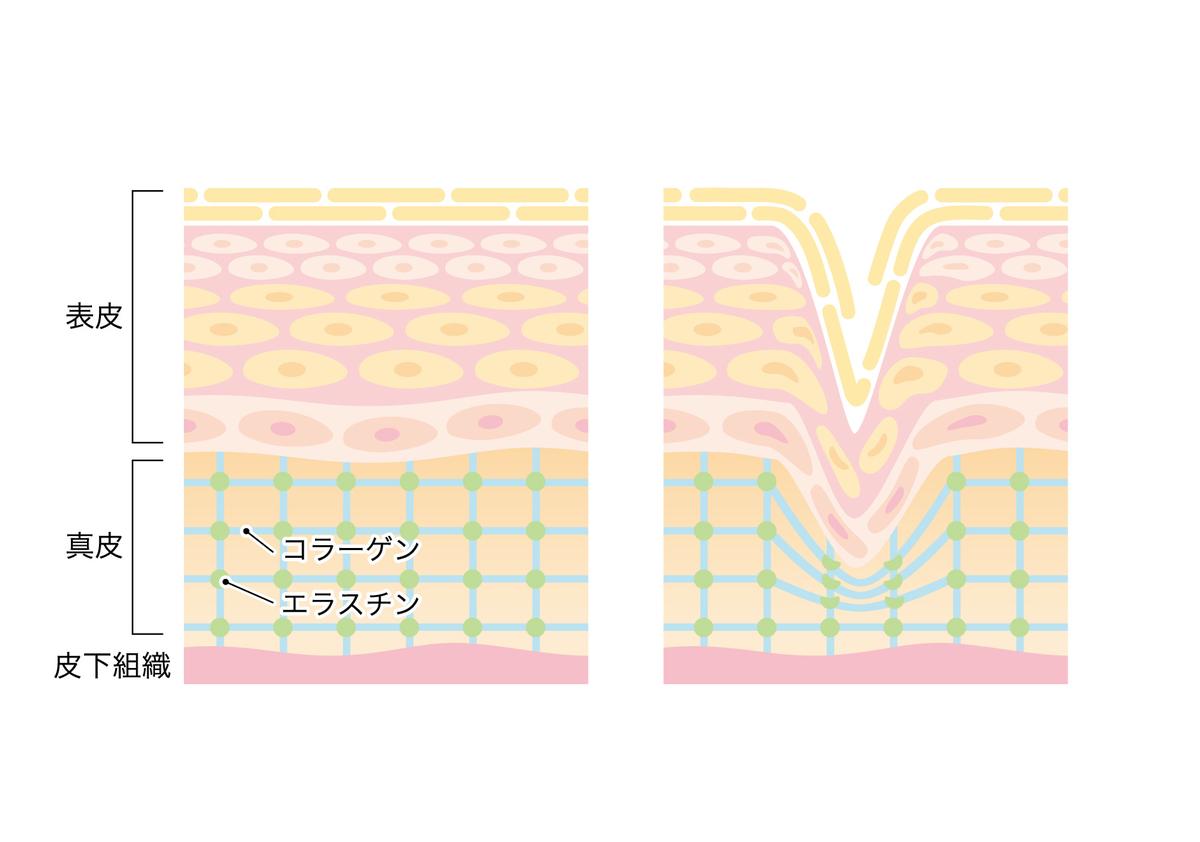 f:id:yuru-fit:20200816101445j:plain