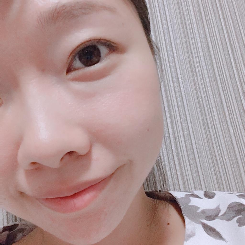 f:id:yurufuwa-nyanko:20180716134152j:image