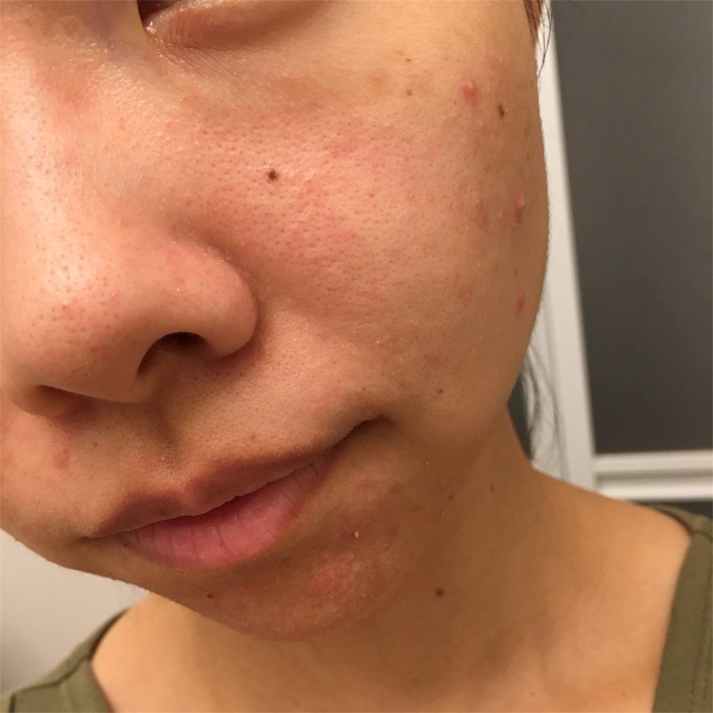 f:id:yurufuwa-nyanko:20180716134204j:image