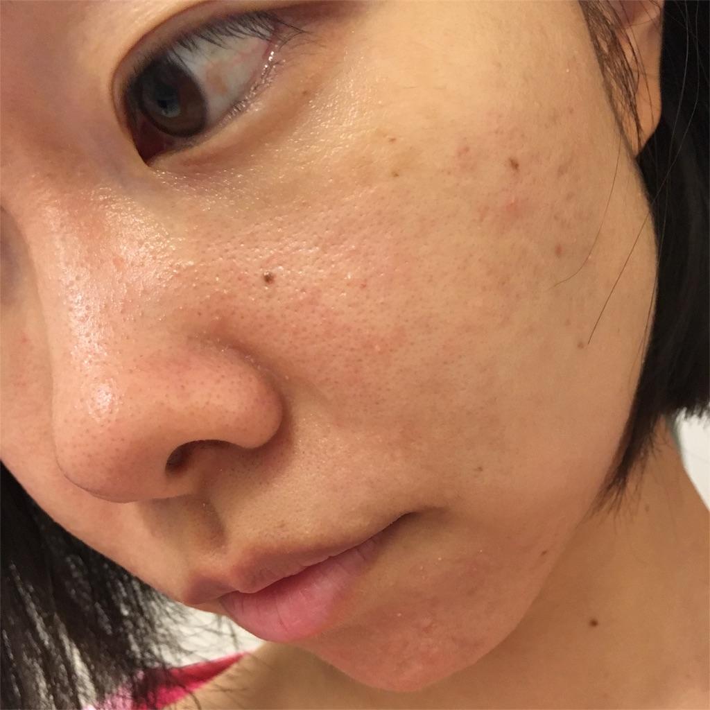 f:id:yurufuwa-nyanko:20180826213708j:image