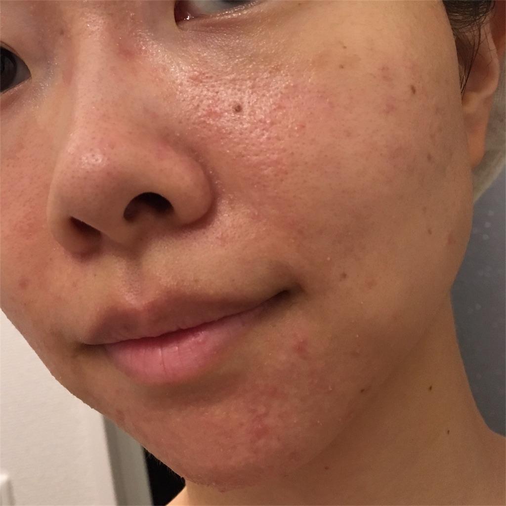f:id:yurufuwa-nyanko:20180902110932j:image
