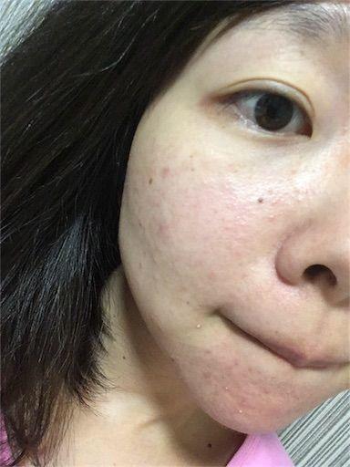 f:id:yurufuwa-nyanko:20180924232346j:image