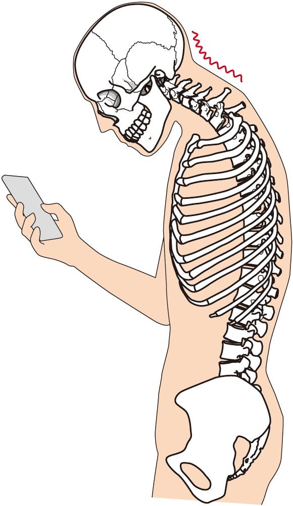 肩こりの原因の一つであるスマホの使用