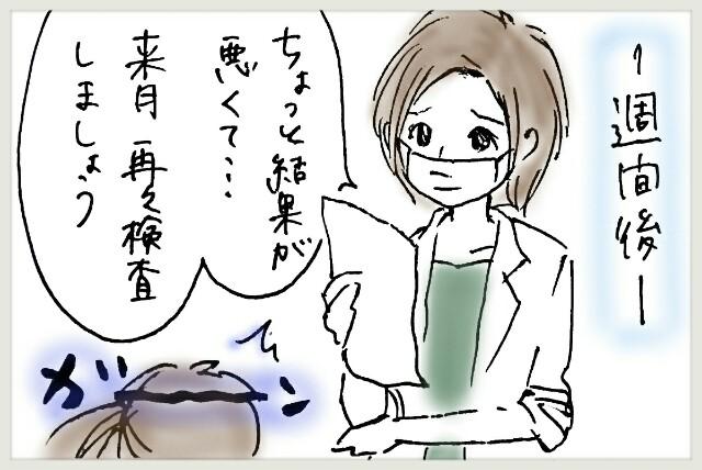f:id:yuruyakanasakamichi:20170704233823j:image