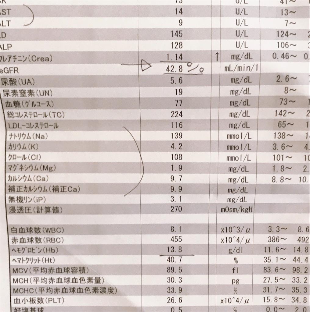 f:id:yushunchi:20200311082512j:image