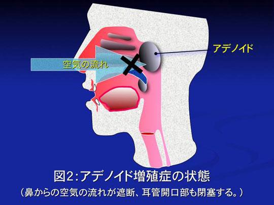 アデノイド 扁桃腺 位置