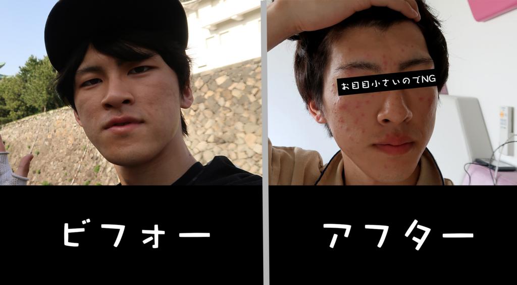 f:id:yutochiba:20180522144032j:plain