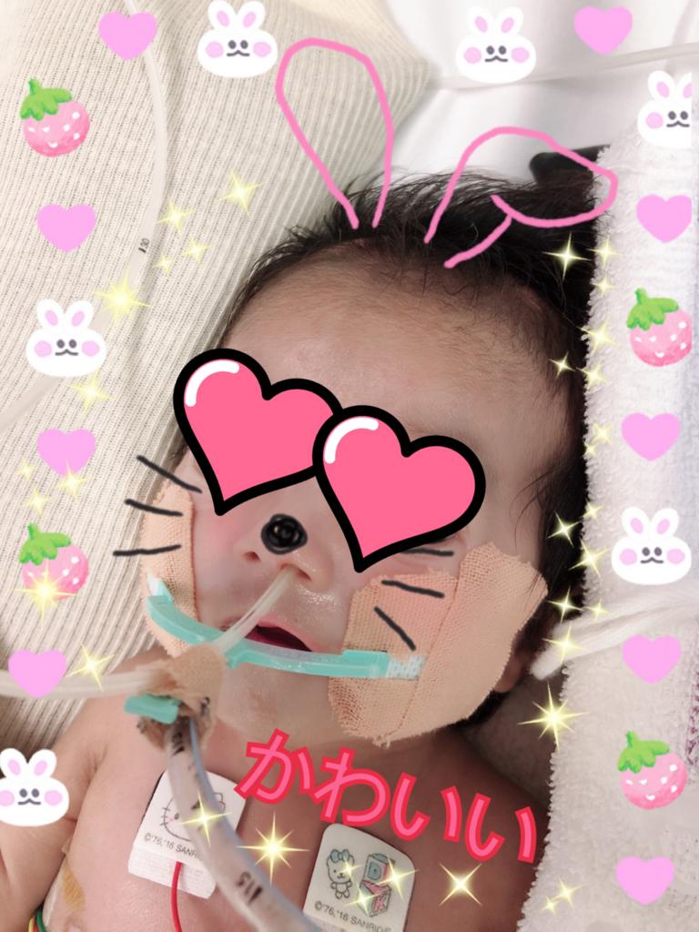 f:id:yuu-blog:20180825124213j:plain