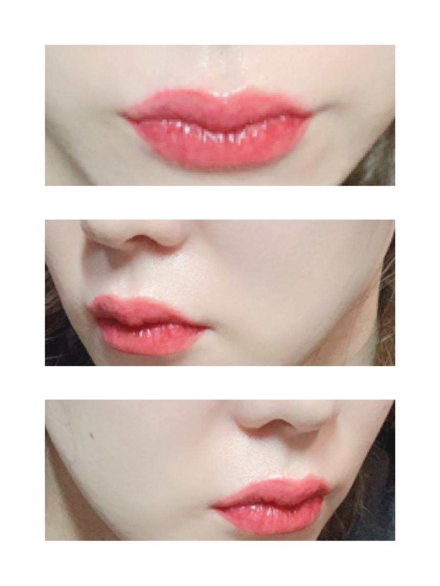 腫れ ない 唇 痛く