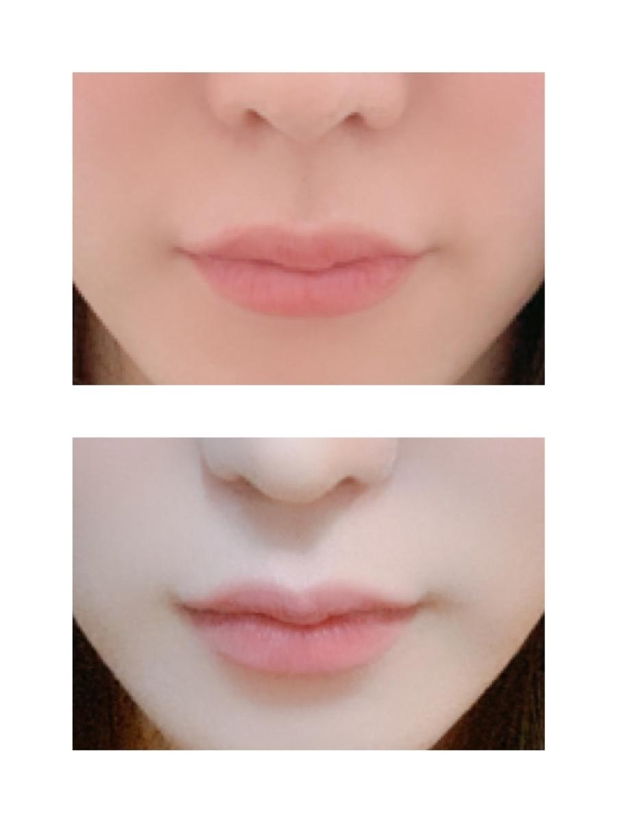 唇 左右 非対称