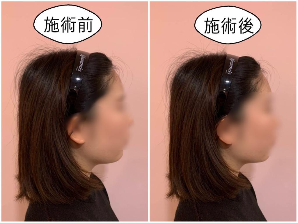 f:id:yuuridayo:20200521023117j:plain