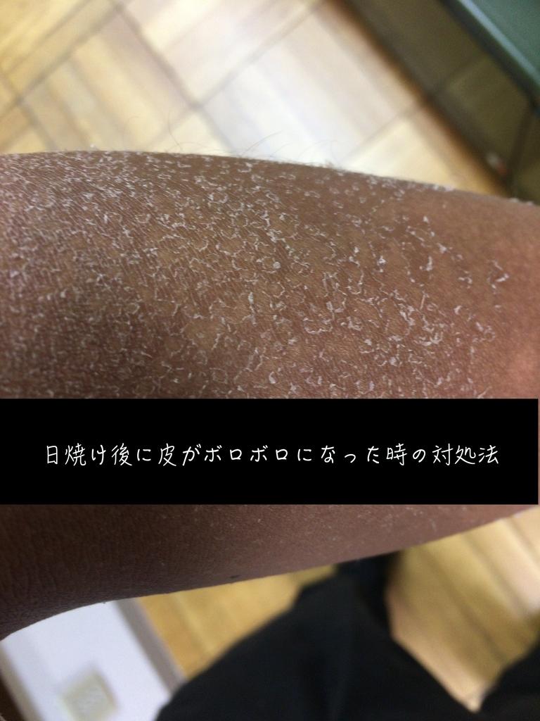 f:id:yuusuke913:20180923180508j:plain
