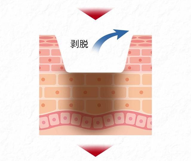 f:id:yuuzi7749ryu:20170728082155p:plain