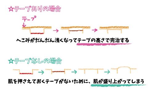 f:id:yuyakoyu:20170403075713j:plain