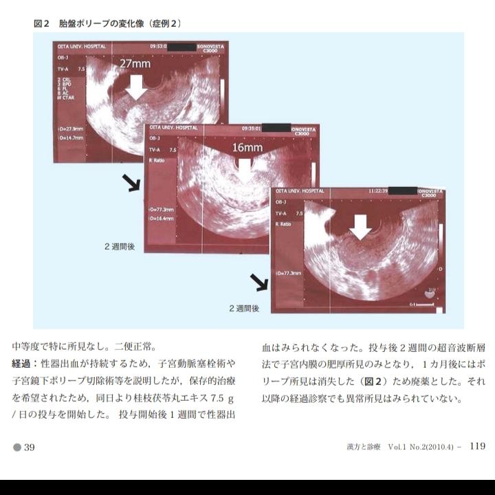 f:id:yuyuyunana:20190317151217j:plain