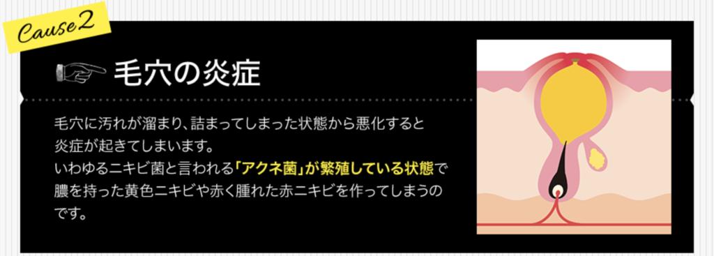 f:id:yuzubaferret:20200814130855p:plain