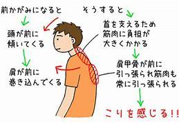 f:id:yuzuki-shimizu:20181117151739j:plain