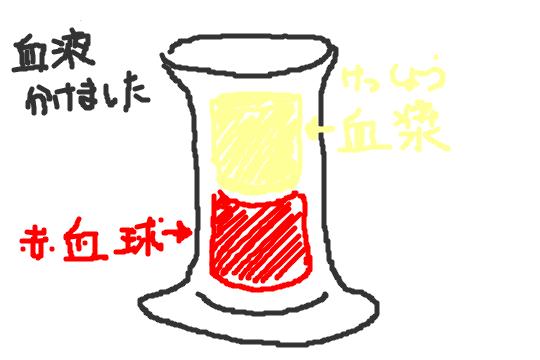 f:id:zawazawawa:20170122174921p:plain