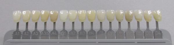 f:id:zirconia-ceramic:20180523064051j:plain