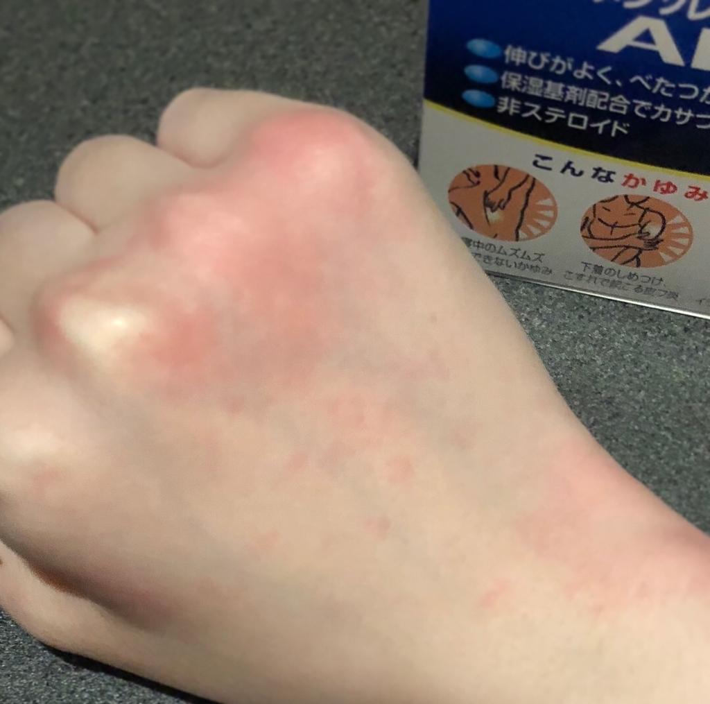 寒暖差アレルギー蕁麻疹